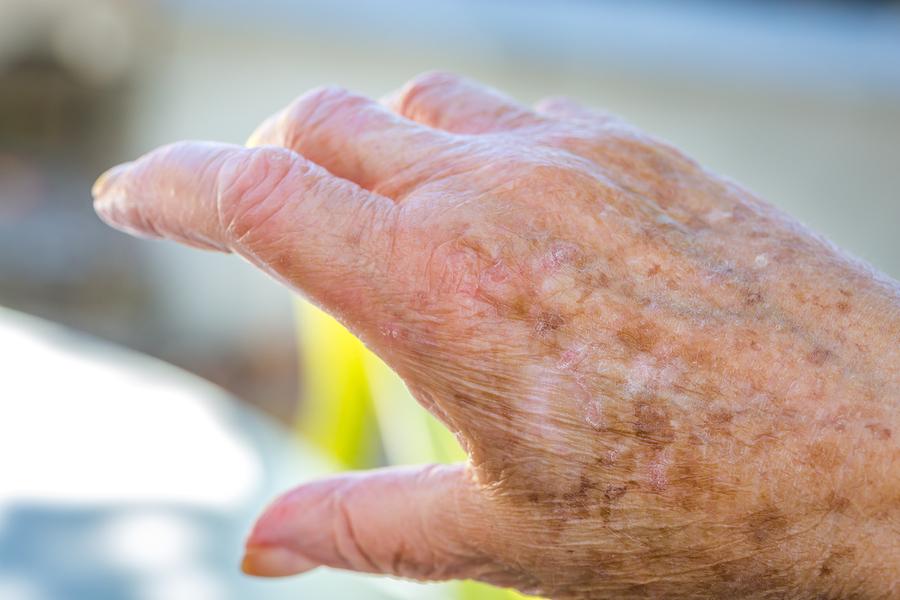 Home Health Care in Yuba City CA: Elderly Skin Care