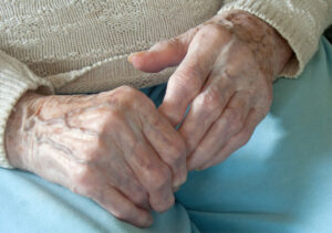 Senior Care in Yuba City CA: Arthritis
